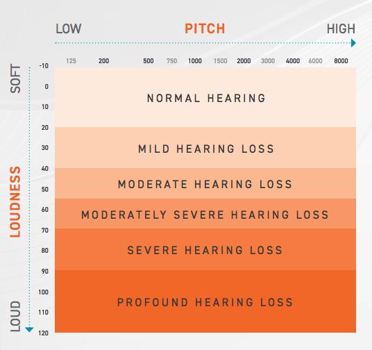 hearing loss level